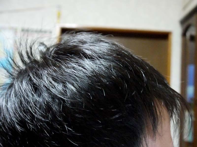 AGA治療14ヶ月目右側頭部