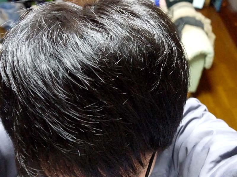 AGA治療1年3ヶ月頭頂部
