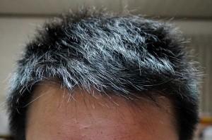 AGA治療1年4ヶ月前頭部