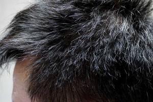 AGA治療1年4ヶ月側頭部左
