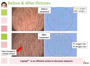 キャピキシル臨床データ写真