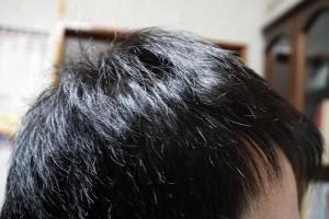 AGA治療1年6ヶ月目側頭部右