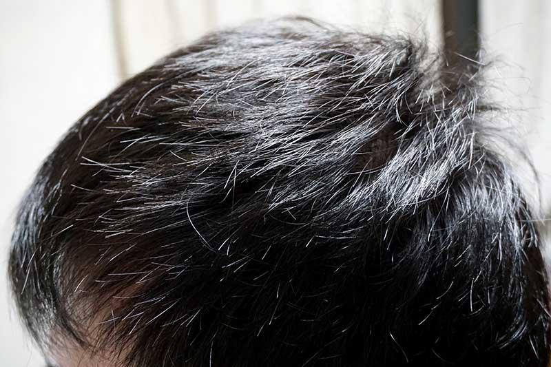 AGA治療1年6ヶ月目側頭部左