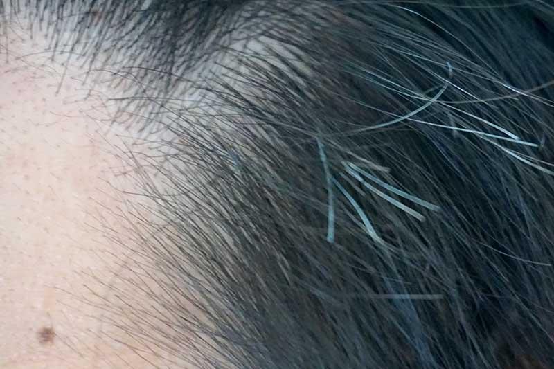 M字左産毛