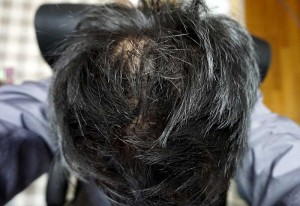 AGA治療1年6ヶ月目セット済み頭頂部