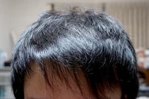 AGA治療1年7ヶ月目前髪
