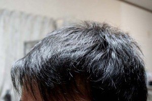 AGA治療1年7ヶ月目前髪左