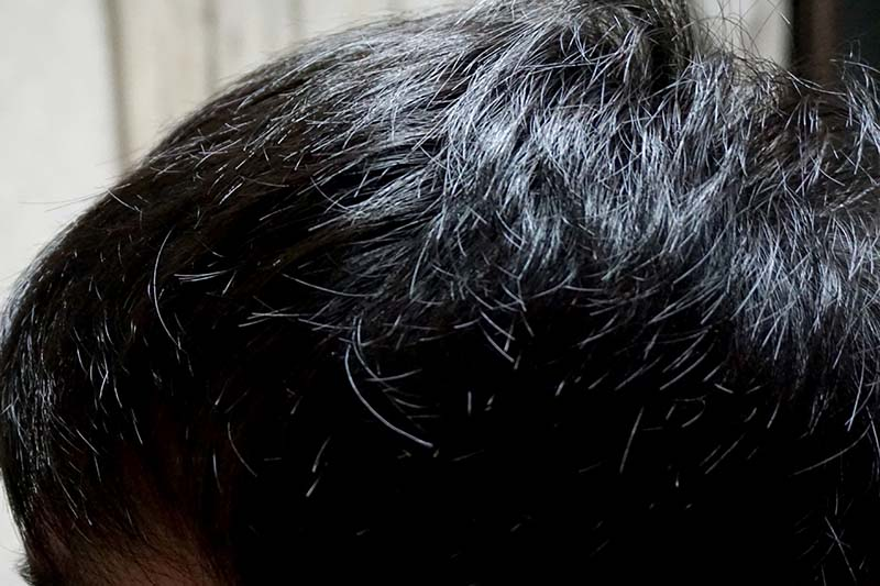 AGA治療1年7ヶ月目側頭部左