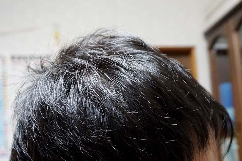 AGA治療1年7ヶ月目側頭部右