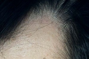 AGA治療1年7ヶ月目M字左