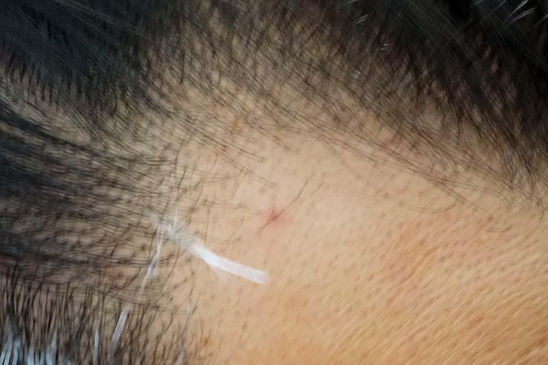AGA治療1年7ヶ月目M字右
