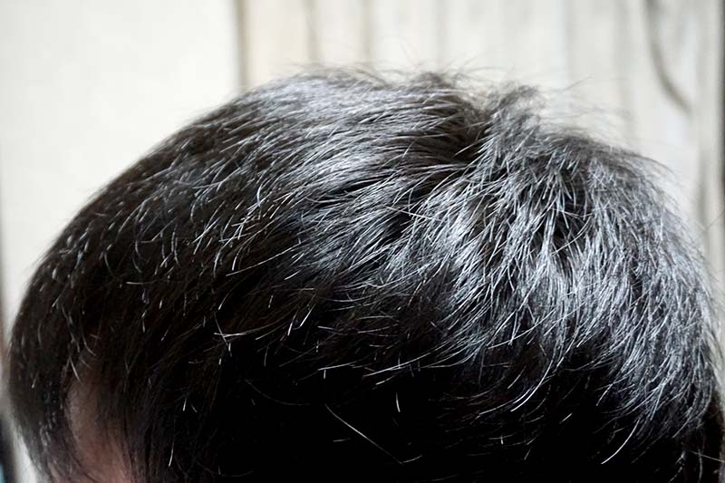 AGA治療1年8ヶ月目側頭部左