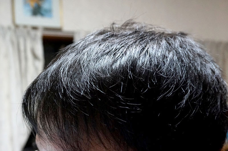 AGA治療1年9ヶ月目前頭部左