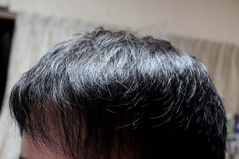 AGA治療1年10ヶ月目前頭部左
