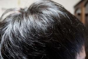AGA治療1年10ヶ月目側頭部右
