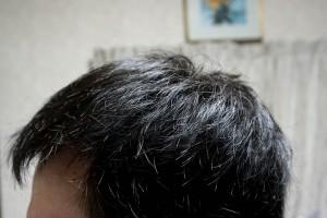 AGA治療23ヶ月目左側頭部