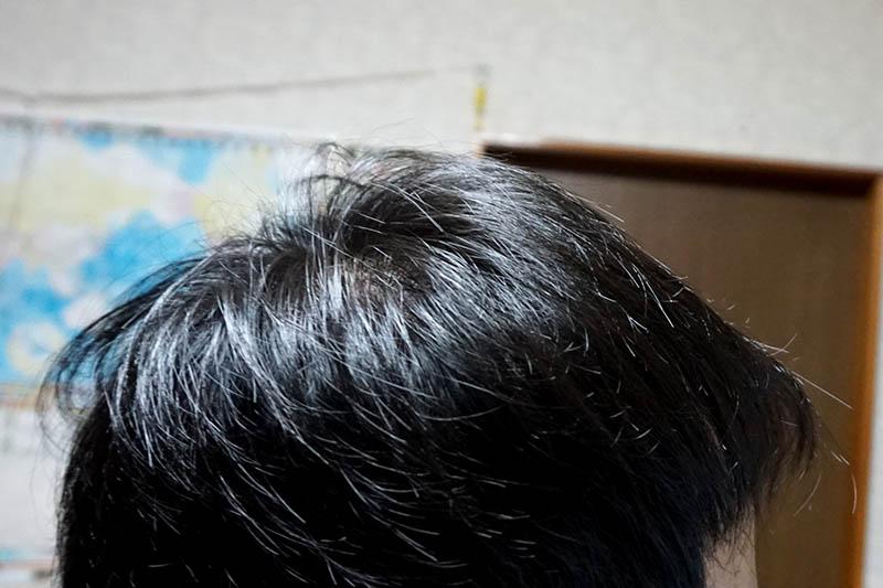 AGA治療2年目側頭部右