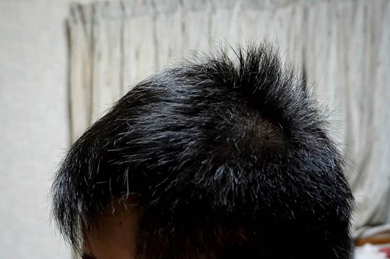 AGA治療2年1ヶ月目側頭部左