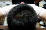 AGA治療775日目 治療2年1ヶ月目の経過写真
