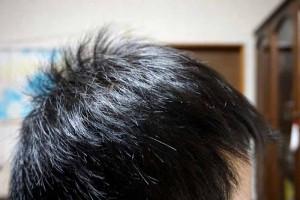 AGA治療2年3ヶ月目側頭部右