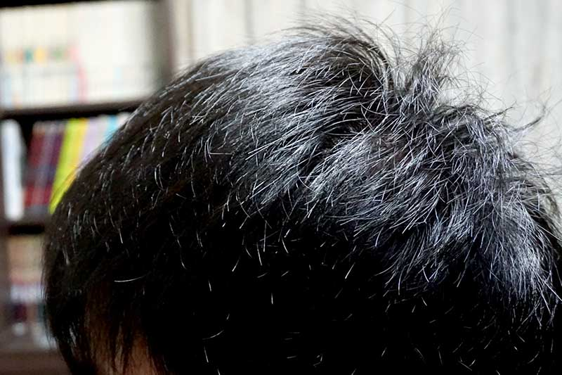 AGA治療2年4ヶ月目側頭部左