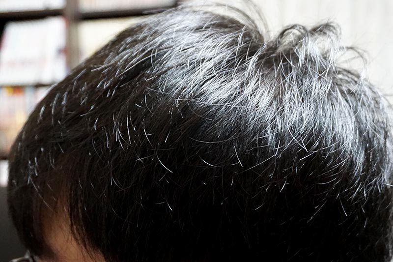 AGA治療2年6ヶ月目側頭部左