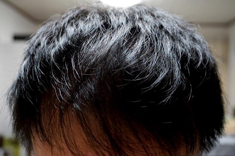 AGA治療2年7ヶ月目前髪