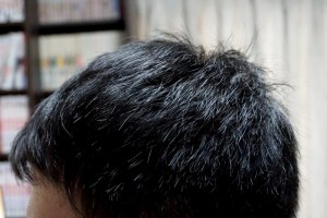 AGA治療2年7ヶ月目左側頭部