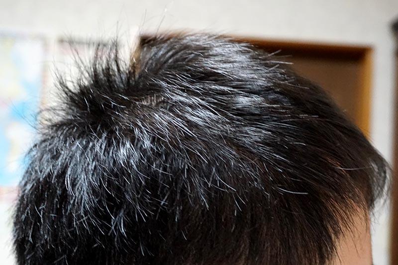 AGA治療2年7ヶ月目右側頭部
