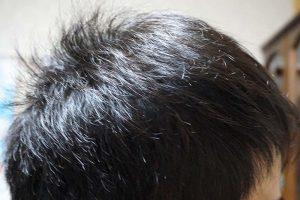 AGA治療2年8ヶ月目側頭部右