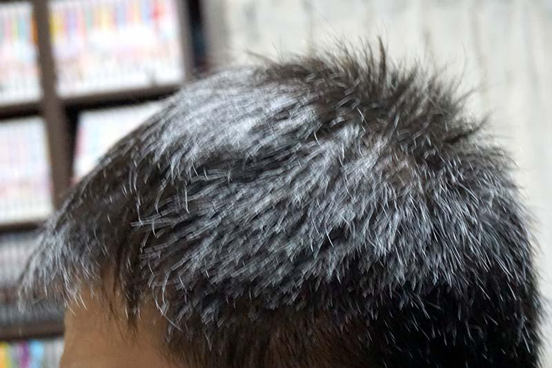 AGA治療2年9ヶ月目側頭部左