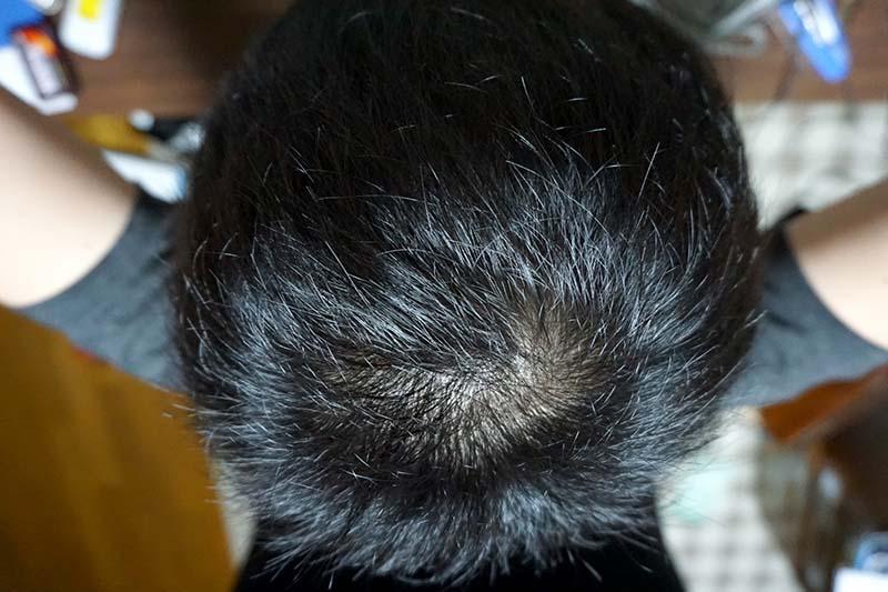 AGA治療2年9ヶ月目頭頂部