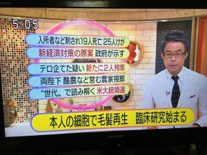 毛髪再生NHK