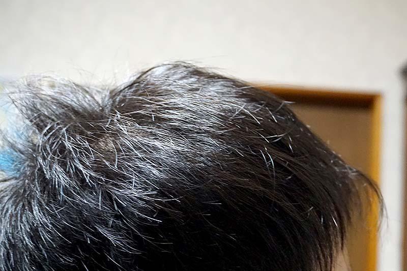 AGA治療2年10ヶ月目側頭部右