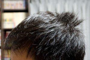AGA治療2年10ヶ月目側頭部左