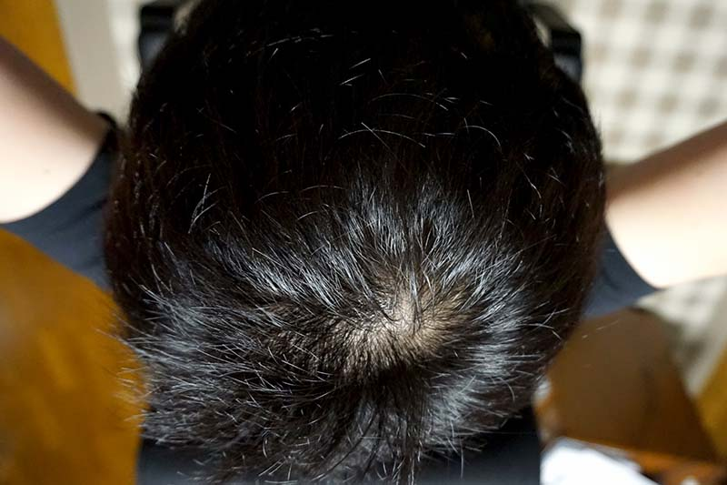 AGA治療2年10ヶ月目頭頂部