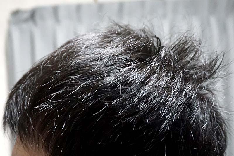 AGA治療3年1ヶ月目側頭部左