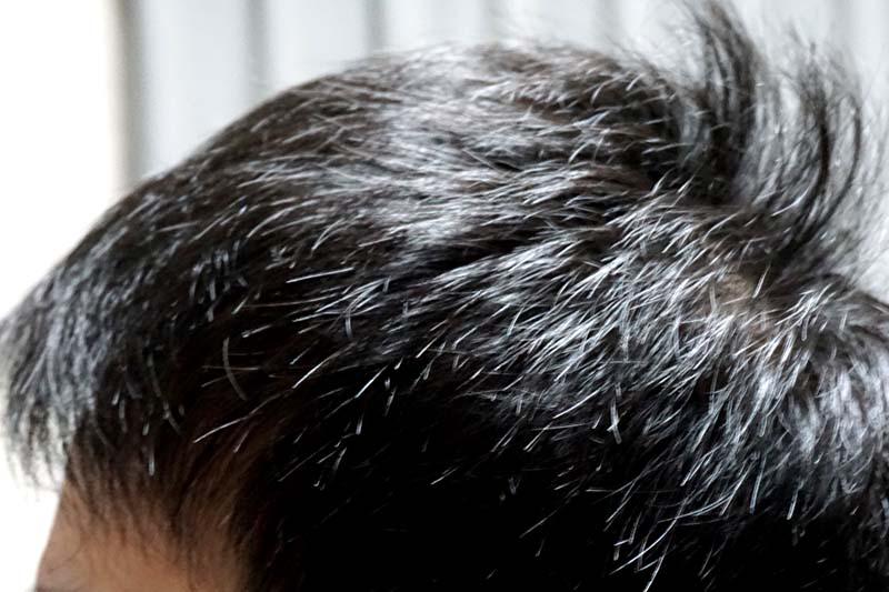 AGA治療3年2ヶ月目側頭部右