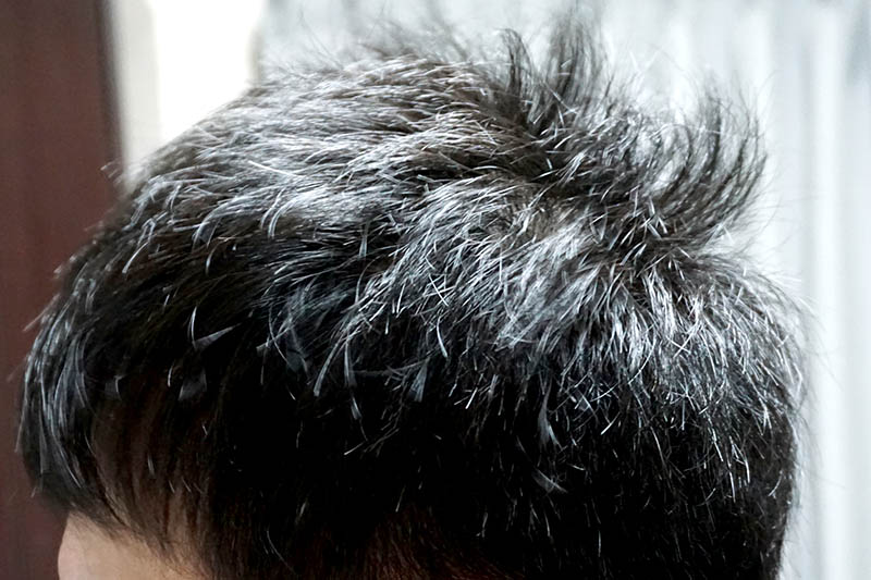 AGA治療3年3ヶ月目側頭部左