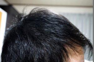 AGA治療3年4ヶ月目側頭部右