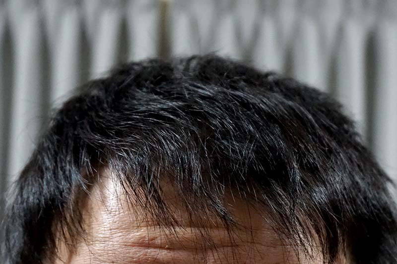 AGA治療3年5ヶ月前髪