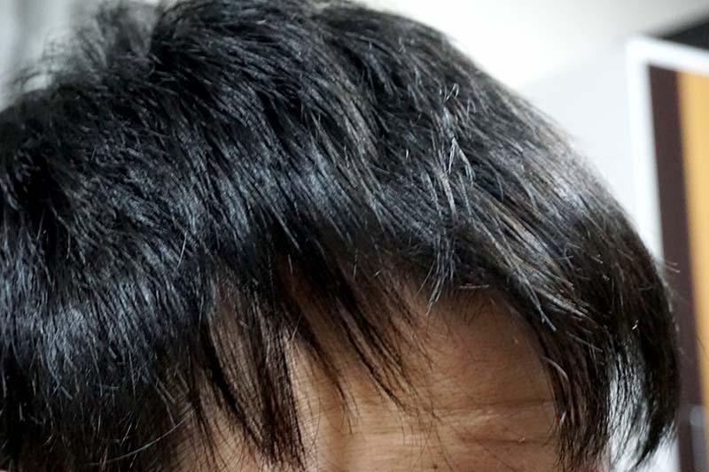 AGA治療3年5ヶ月前髪右