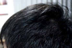 AGA治療3年5ヶ月側頭部左
