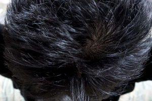 AGA治療3年5ヶ月頭頂部