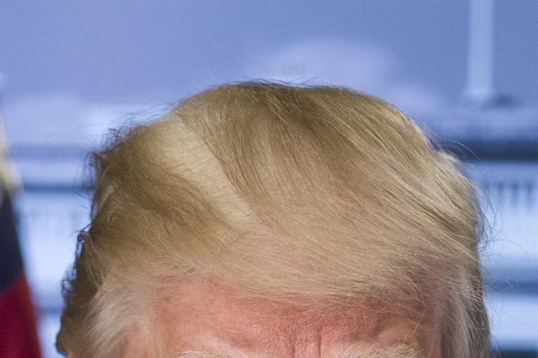 ドナルド・トランプ 薄毛
