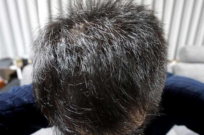 AGA治療3年6ヶ月目前頭部