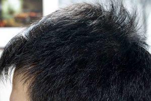 AGA治療3年7ヶ月目側頭部左