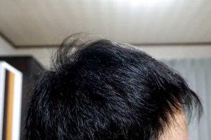 AGA治療3年8ヶ月目側頭部右
