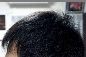 AGA治療3年8ヶ月目側頭部左