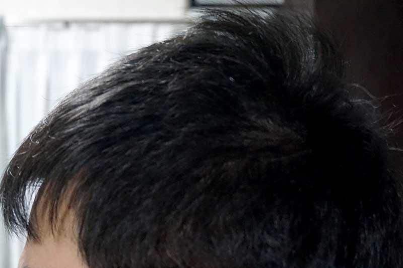 AGA治療3年9ヶ月目側頭部左